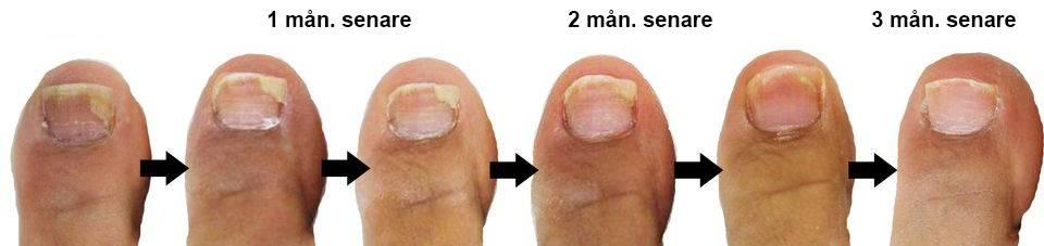 laser mot nagelsvamp